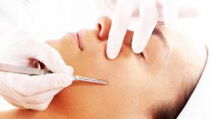 dermaplaning 300x170 - Skin Care